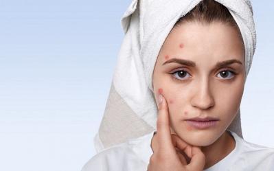 Как да се грижим за кожа с акне
