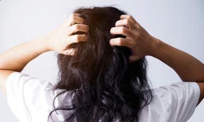 Помощ! Въшки – какво да правим, симптоми и признаци